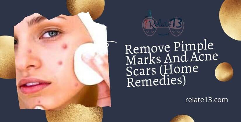 How To Remove Pimple Marks And Acne Scars (Home Remedies)